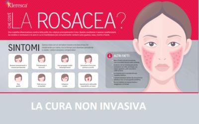 Trattamento Rosacea Kleresca®: terapia non invasiva per una patologia che colpisce oltre 415 milioni di persone